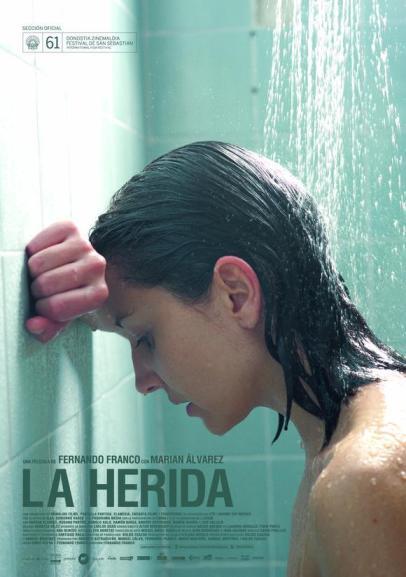 -La Herida-, de Fernando Franco.